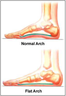 foot-arch